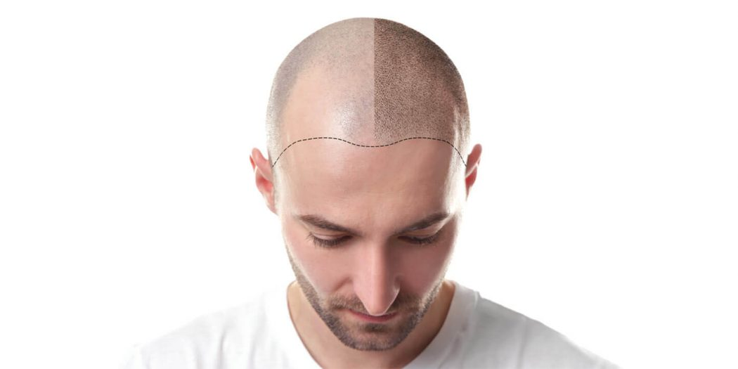 What is Safe Donor Area for Hair Transplantation